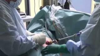 Операция на брюшной полости.flv