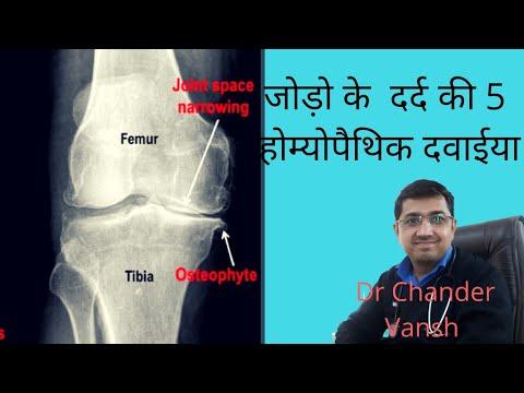 5 best homoeopathic medicines for osteoarthritis/ joint pain( जोड़ो के दर्द की 5 होम्योपैथिक दवाईया)