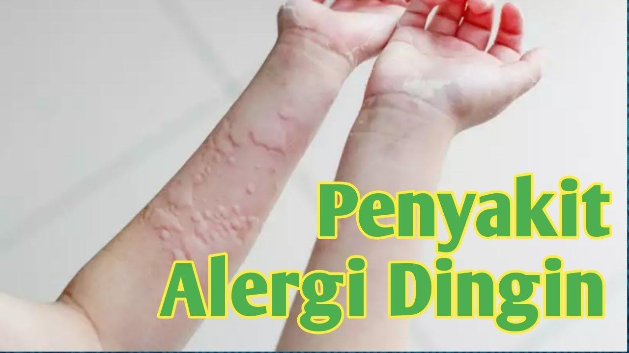 Gejala, Penyebab & Cara Mengobati Alergi Dingin pada Anak ...