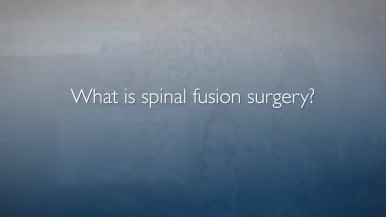 Approaches to Spinal Fusion | FAQ's