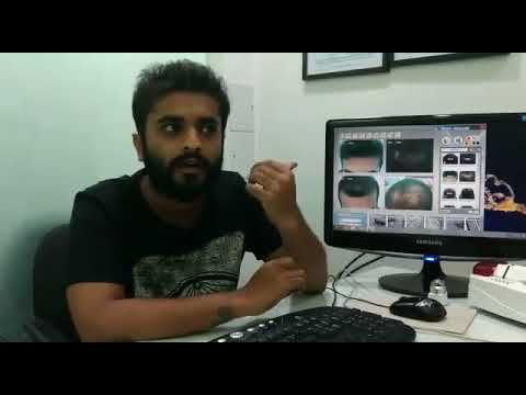 Hairline International Clinic PRP Reviews, PRP for Hair Loss Treatment in Bangalore