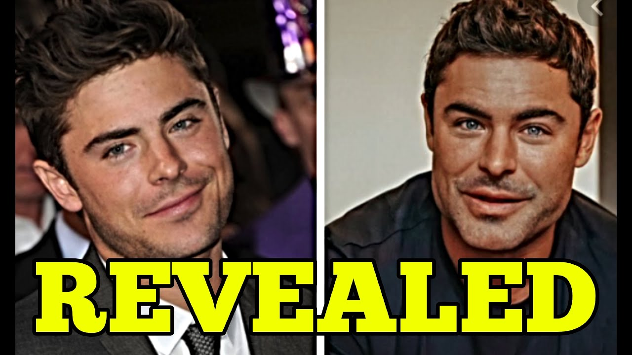 DOCTOR REVEALS WHAT ZAC EFRON HAD REALLY DONE TO HIS FACE