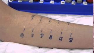 Skin prick test is the path to immunotherapy. Immunotherapy can onl...