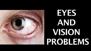 EYES AND VISION PROBLEMS | QUICK TIPS FOR EYE | Dr.Sanjiv Maru on Eye problems | Doctor's advice |