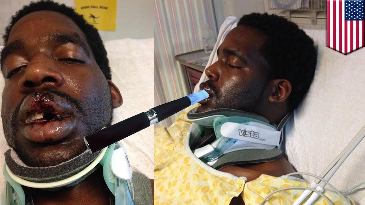 une cigarette lectronique brise le cou d 39 un homme et le paralyse vie youtube. Black Bedroom Furniture Sets. Home Design Ideas
