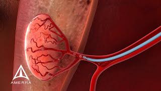 Uterine Fibroid Embolization - 3D Medical Animation
