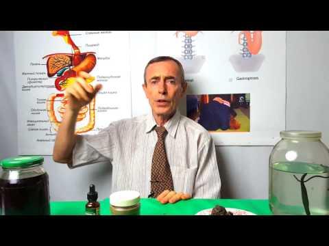 Эффективное лечение артроза. Как лечить артроз?