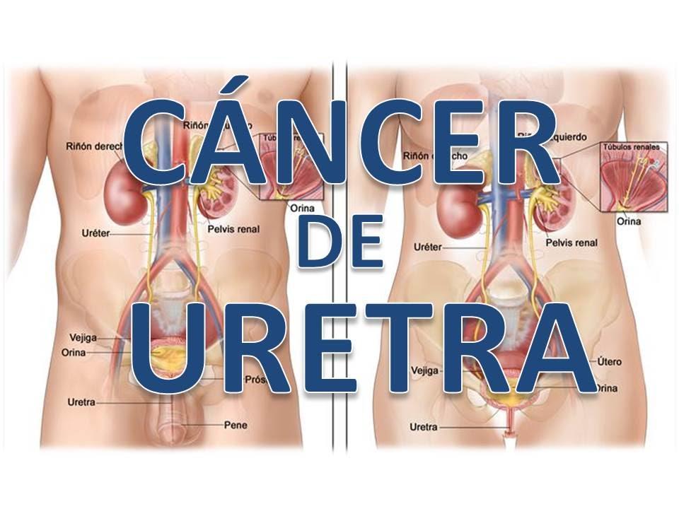 Cancer de uretra hombre sintomas, - Cancer uretra hombre