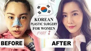 Gambar cover MY PLASTIC SURGERY IN KOREA PART 2 - RECOVERY & RESULTS - Docfinderkorea 성형 후기 2부 닥파인더코리아