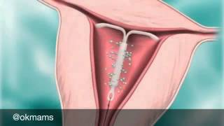 видео Внутриматочная спираль: за и против   спираль от беременности   спираль от беременности фото