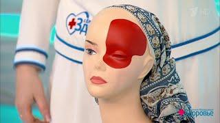 видео Таблетки от мигрени: список эффективных средств