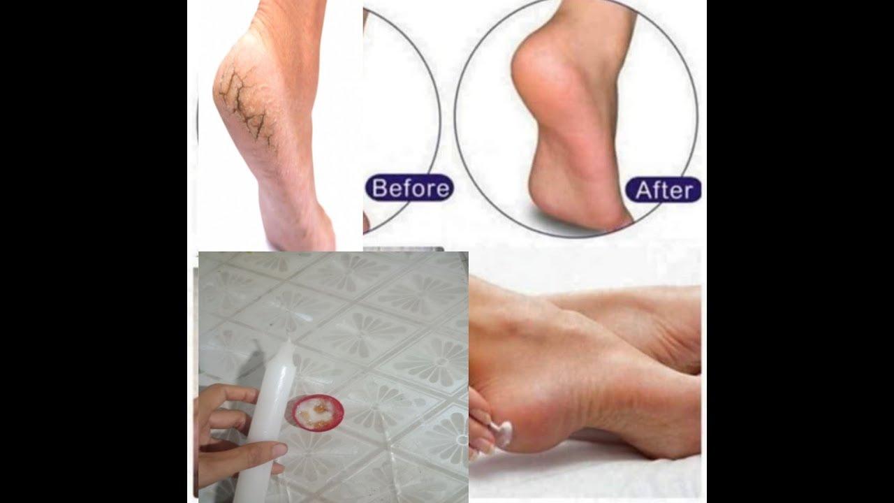 Mẹo trị nứt gót chân tại nhà siêu dễ chỉ bằng 1 cây nến hay đèn cầy