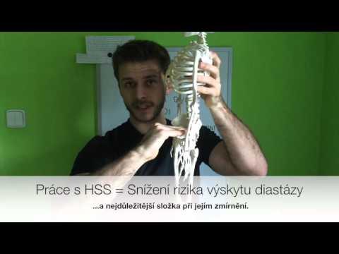 Hluboký stabilizační systém (HSS, držení těla)