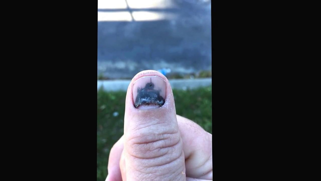 Smashed thumb new fingernail growing underneath black nail broken ...