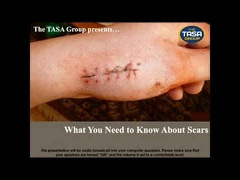 What You Need To Know About Scars