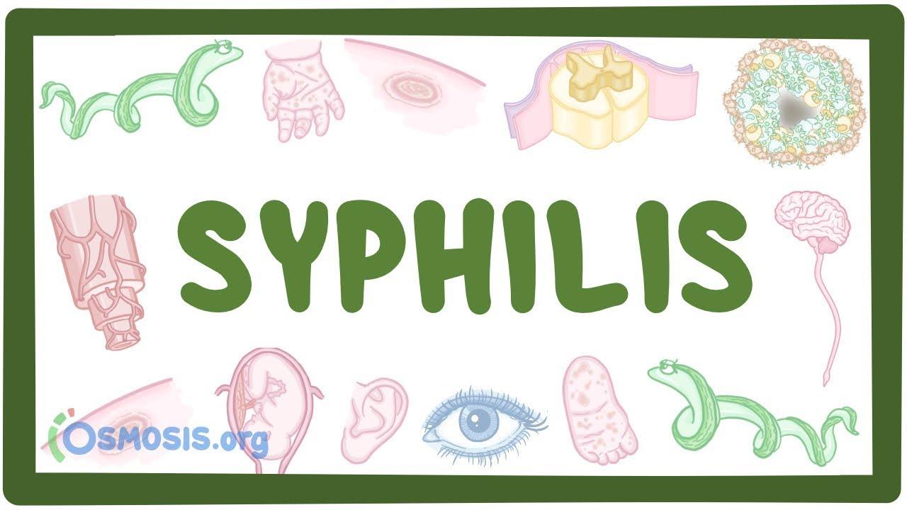 Syphilis – causes, symptoms, diagnosis, treatment, pathology