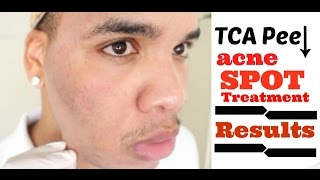25 tca chemical peel spot treatment follow up results hd
