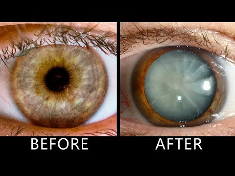 What Happens If You Don't Blink for 30 Days?