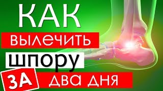 Лечение пяточной шпоры в домашних условиях народными средствами