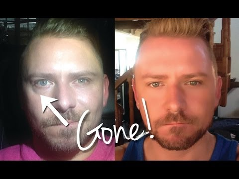HOW I GOT RID OF MY UNDER EYE BAGS (PERMANENTLY)