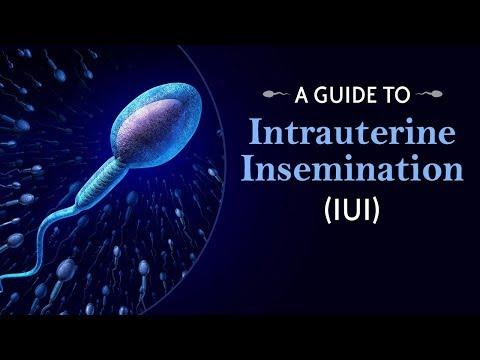 intrauterine-insemination-iui-process-for-infertility-treatment