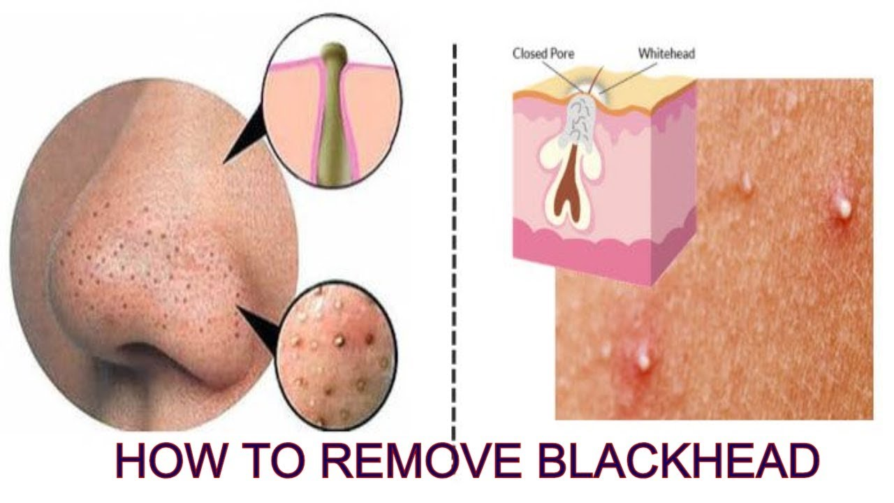 How To Get Rid Of Pimples Acne Fast