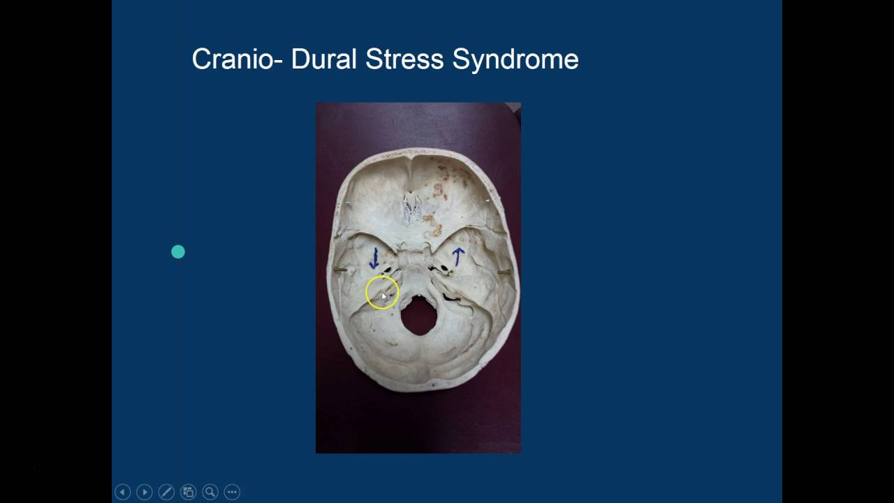 Cranial Release Technique (CRT) - The Cranial Base - YouTube