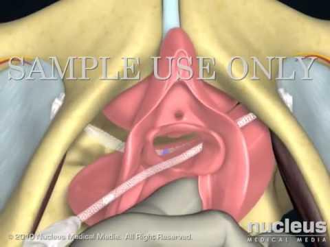 cr bard ajust    vaginal bladder sling cr bard ajust    vaginal bladder sling   youtube  rh   youtube