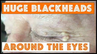 Huge blackheads around the eyes: solar comedones. For medical education