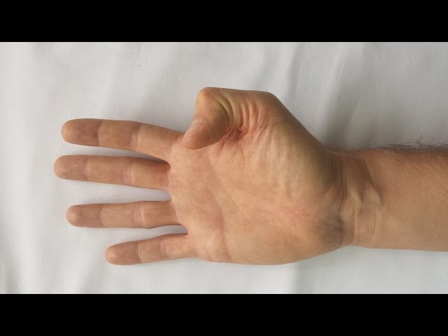 Dureri articulare cauzate de maini ?i revizuiri ale tratamentului