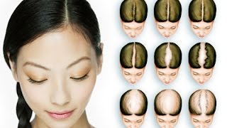 Hair Loss Treatment For Women Pattern Baldness Hair Falling Out Provillus For Women