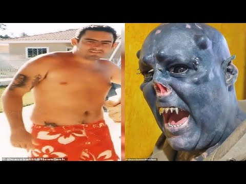 Brazilian tattoo artist turns himself into an 'ORC' by having his nose removed, ears mutilated and h