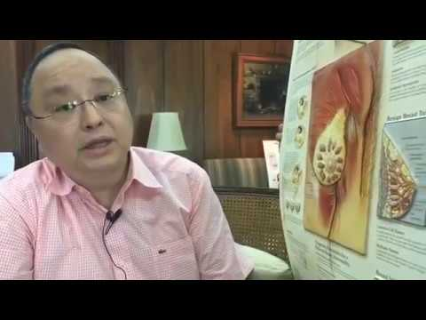 Sintomas ng Kanser, Iwas Kanser sa Suso, Tiyan, Baga, Bukol - ni Doc Willie at Liza Ong #311 from YouTube · Duration:  51 minutes 4 seconds