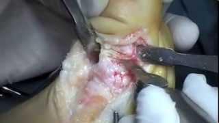Osteotomia de Moberg distal hallux flexus. Moberg osteotomy distal hallux flexus.