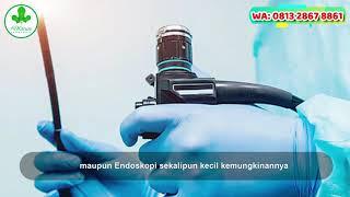 Dampak Penyakit FISURA ANI - BAB / BERAK Berdarah Ambejoss dan Salwa De Nature | #Ambejoss Obat Wasi.