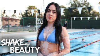 My Vitiligo Stopped Me Wearing Bikinis - Until Now | SHAKE MY BEAUTY