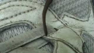Japan Mountain Leech In My Shoe