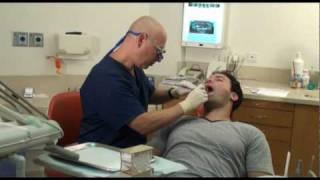 השתלות שיניים - ד