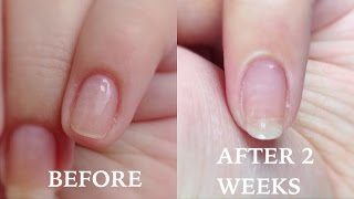 How To: Grow Your Nails in Just TWO WEEKS!!