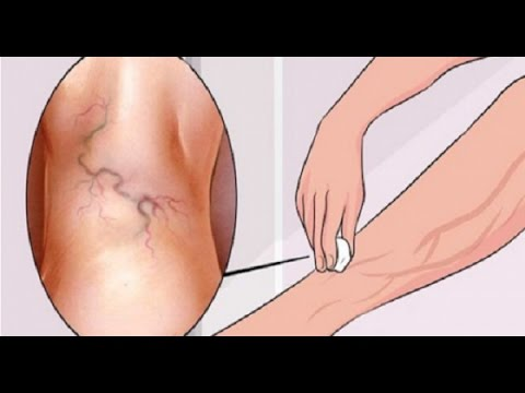 Baixar วิธีกำจัดเส้นเลือดขอดให้หายไปตลอดกาล ง่ายๆ how to get rid of varicose veins naturally