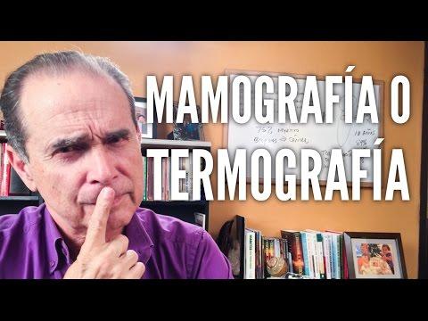 Episodio #1165 Mamografía VS Termografía