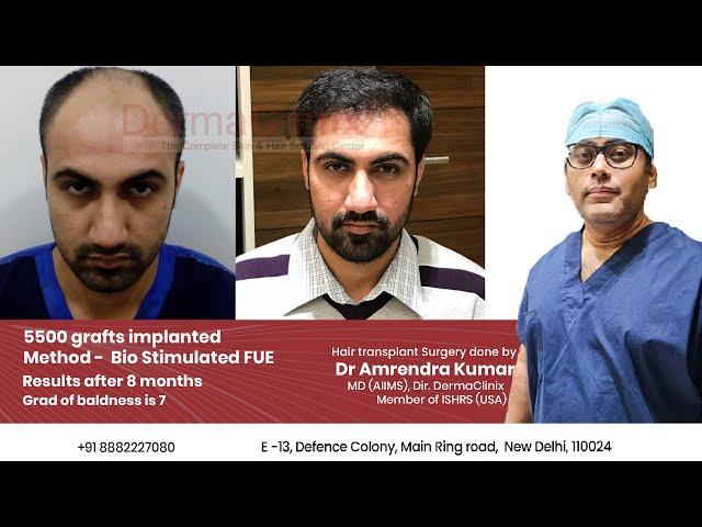 hair transplantation in Delhi