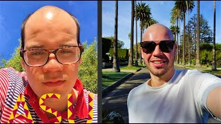 What It's Like Going Bald at 18