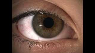 Hippus (pupil fluctuation) in a normal healthy eye