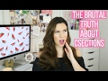 10 THINGS I LEARNED ABOUT C-SECTIONS AFTER HAVING ONE | Hayley Paige