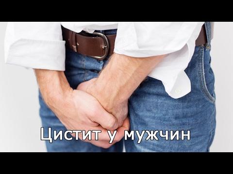 Цистит у мужчин