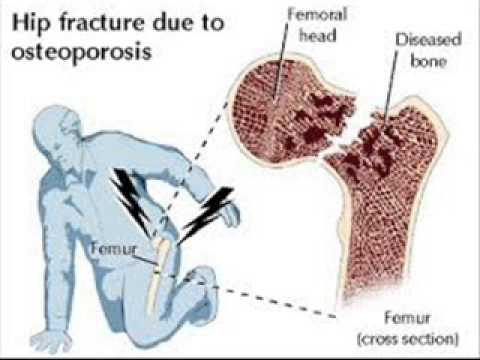 osteoporosis 3 infection control , health education , urdu / hindi, Skeleton
