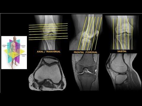 para que es una resonancia magnetica de rodilla