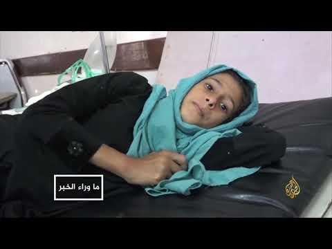 الحرب تهدد بفناء ملايين الأطفال باليمن  - نشر قبل 9 ساعة