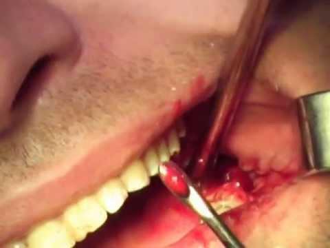 Остеомиелит челюсти - причины, симптомы, диагностика и лечение
